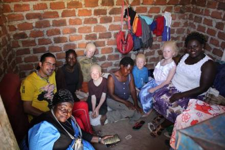 Fabio and Fridah with her children with albinism